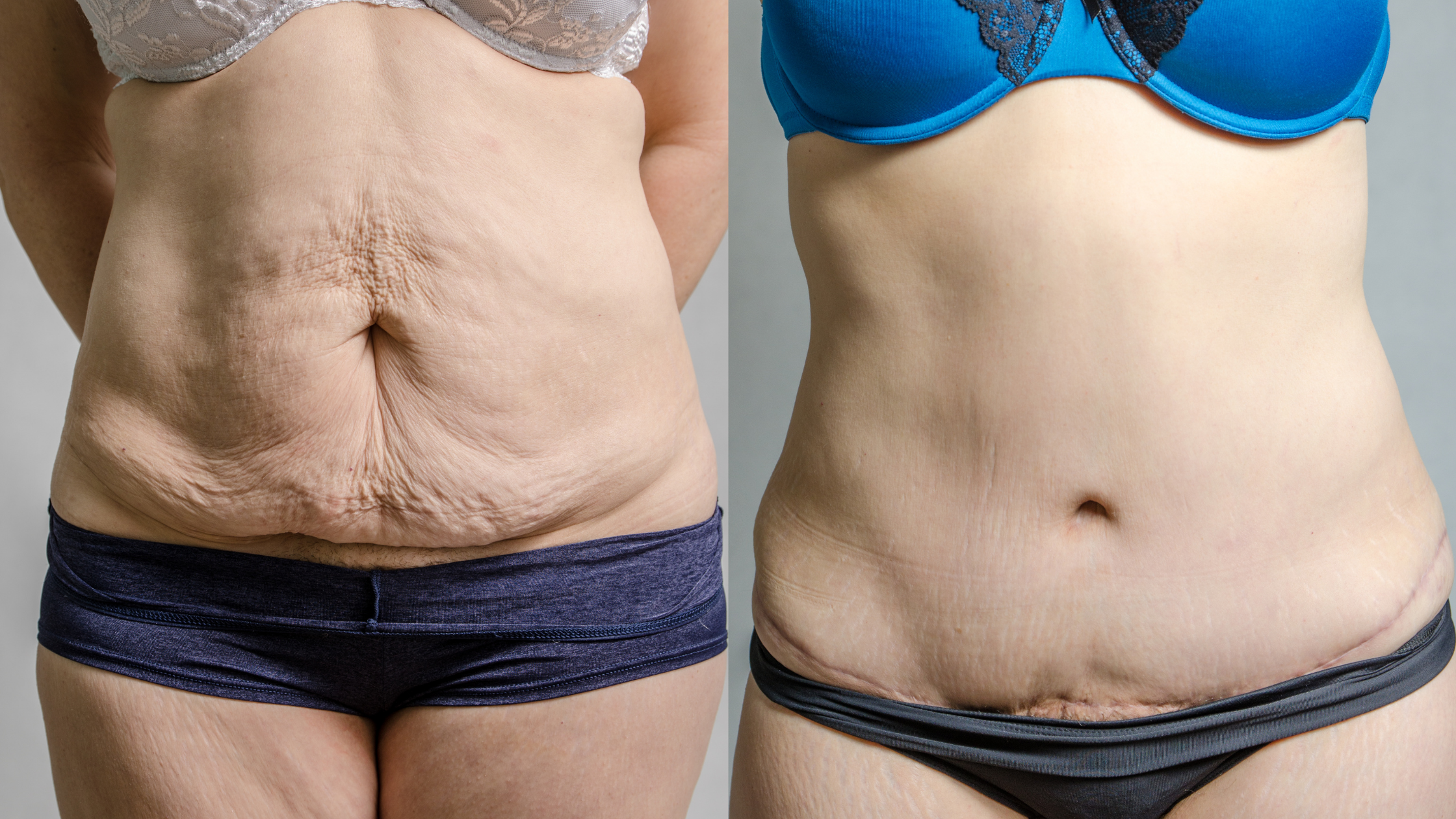 Tummy Tuck Surgery, Abdominoplasty Packages in Thailand & Malaysia ...