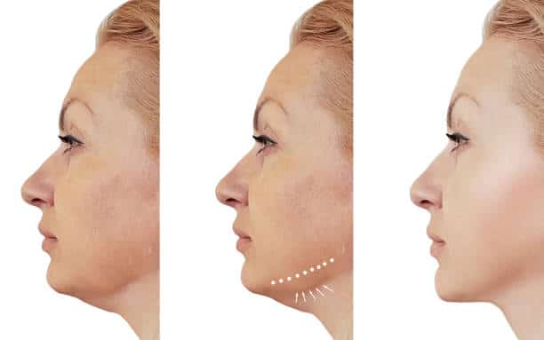 woman double chin before and after procedures, retouching