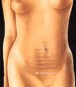 Mini Tummy Tuck