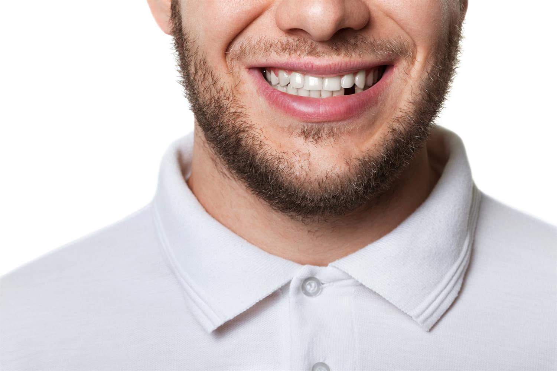 dental man smiling